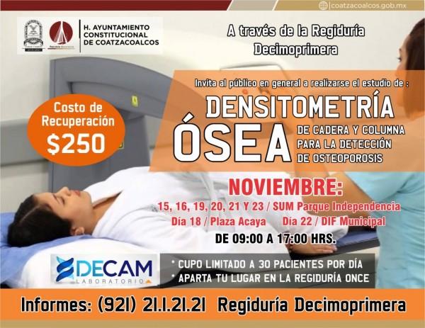 Ofrece Ayuntamiento estudios de Densitometría Ósea a bajo costo